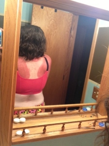 Not sure what is more depressing - my back being this burnt or the fact that I am this pale in real life.